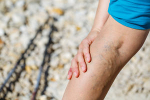 Home Care Services Belton MO - Are Tall People at Greater Risk for Varicose Veins?